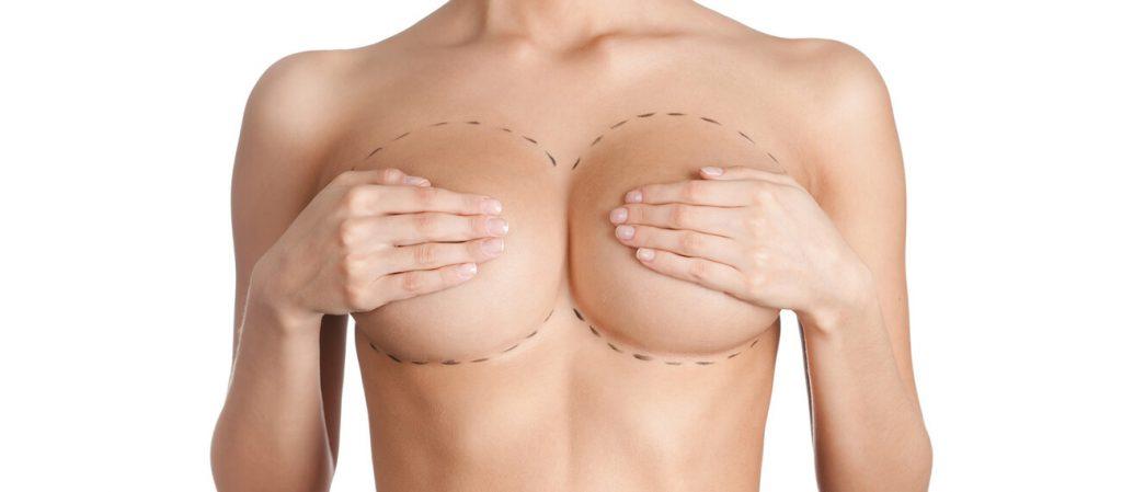 mellplasztika műtét