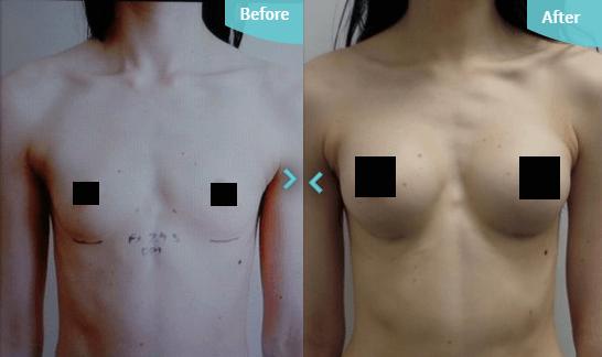 műtét után