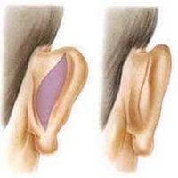 Elálló fülek korrekciója