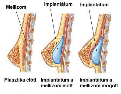 implantátum behelyezés lehetőségek