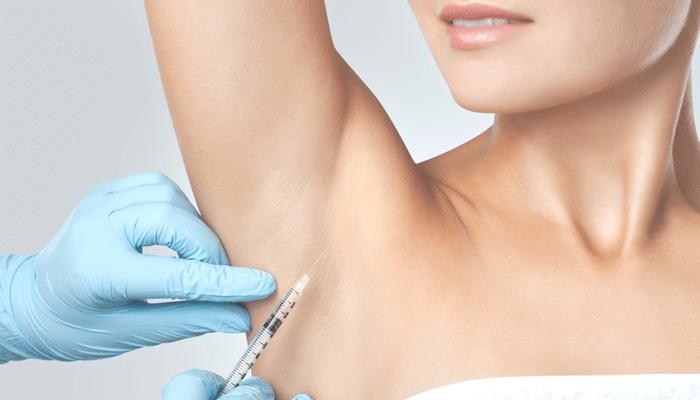 botox izzadás ellen